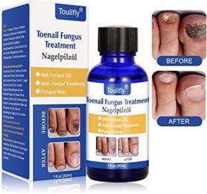 Toulifly Toenail Fungus Treatment